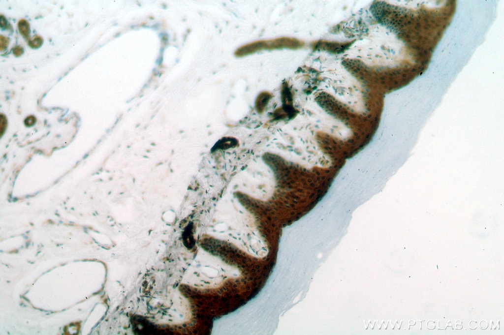 IHC staining of human skin using 15902-1-AP