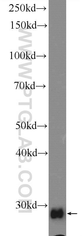 WB analysis of rat liver using 15063-1-AP