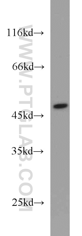 WB analysis of Jurkat using 10764-1-AP