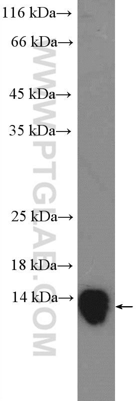 WB analysis of HL-60 using 25225-1-AP