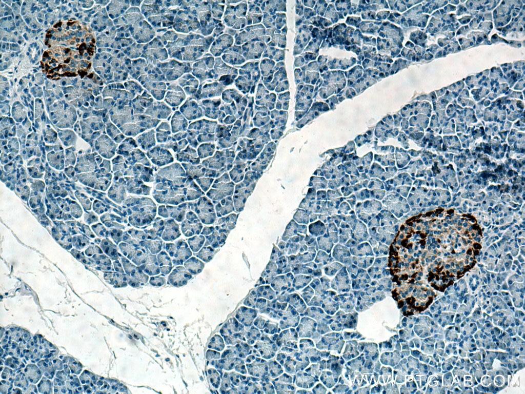 IHC staining of human pancreas using 67286-1-Ig