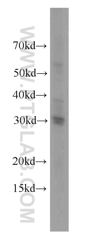 Histone H1.0 WB 17510-1-AP Histone H1.0 Antibody  H1 histone family, member 0, H10, H1F0, H1FV, Histone H1, Histone H1(0), Histone H1.0;WB