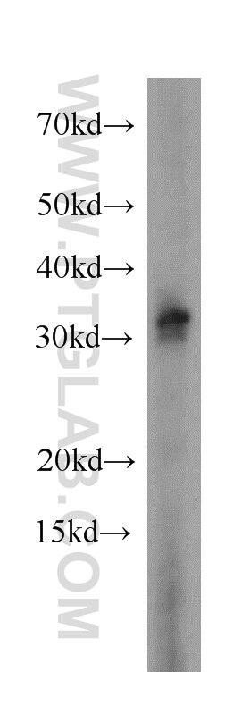 17510-1-AP;A431 cells