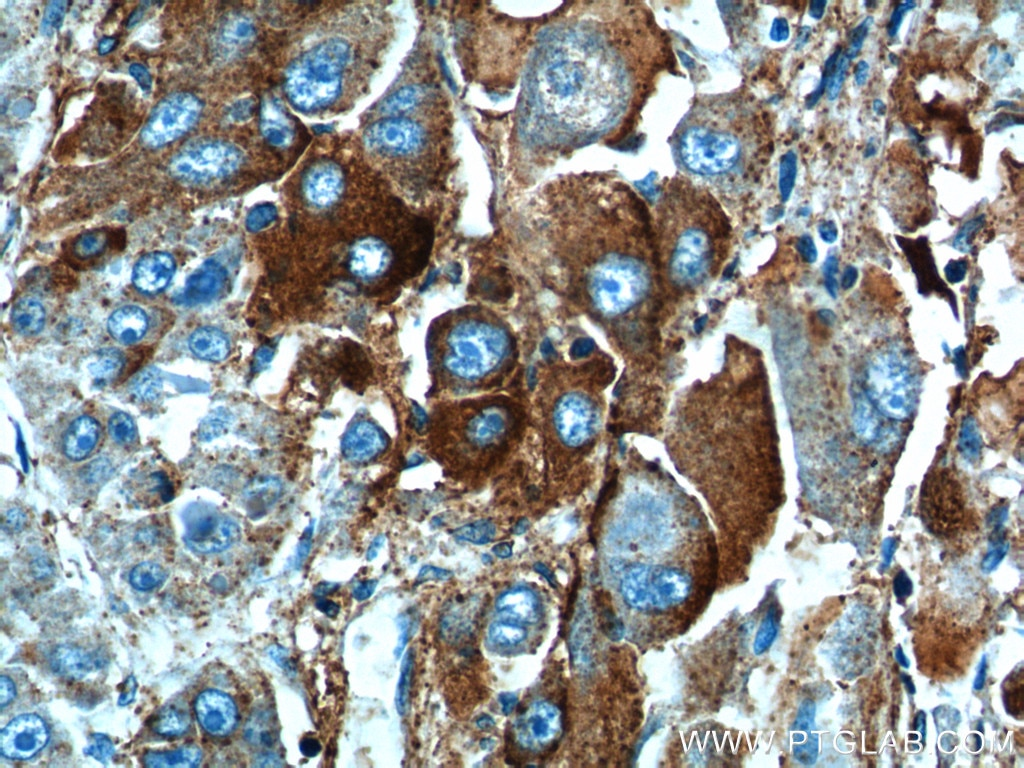 12863-1-AP;human liver cancer tissue