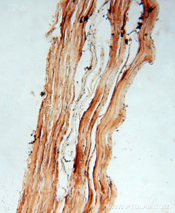 15519-1-AP;human skeletal muscle