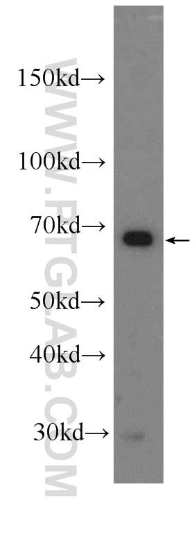 HADHA WB 10758-1-AP HADHA Antibody  78 kDa gastrin binding protein, ECHA, HADH, HADHA, LCHAD, MTPA, TP ALPHA;WB