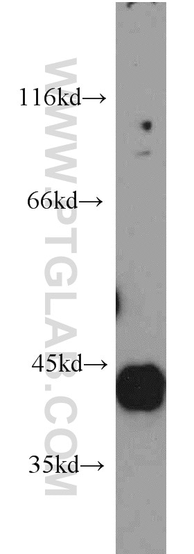 HAPLN4 WB 21228-1-AP HAPLN4 Antibody  Brain link protein 2, BRAL2, HAPLN4, KIAA1926;WB