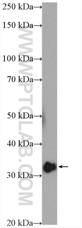 WB analysis of HeLa using 11266-1-AP