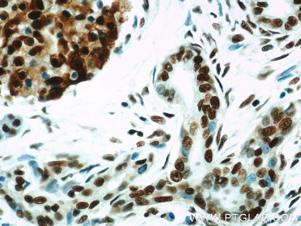 IHC staining of human pancreas cancer using 10197-1-AP