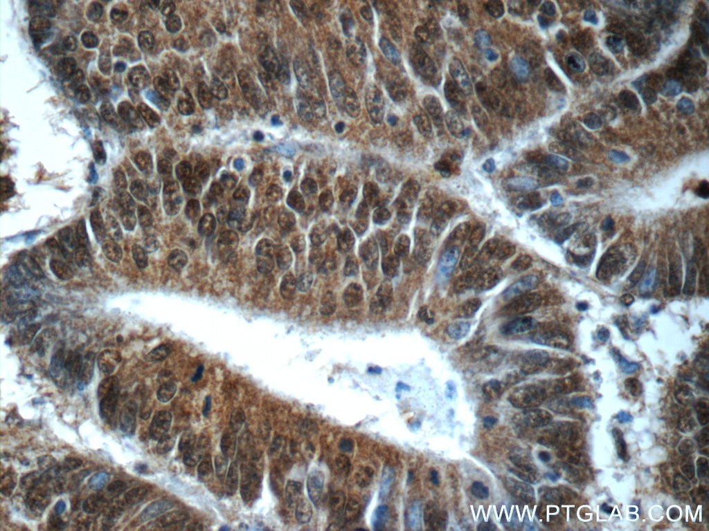 IHC staining of human colon cancer using 24913-1-AP