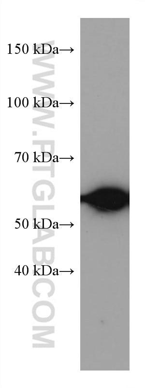 WB analysis of MCF-7 using 67165-1-Ig