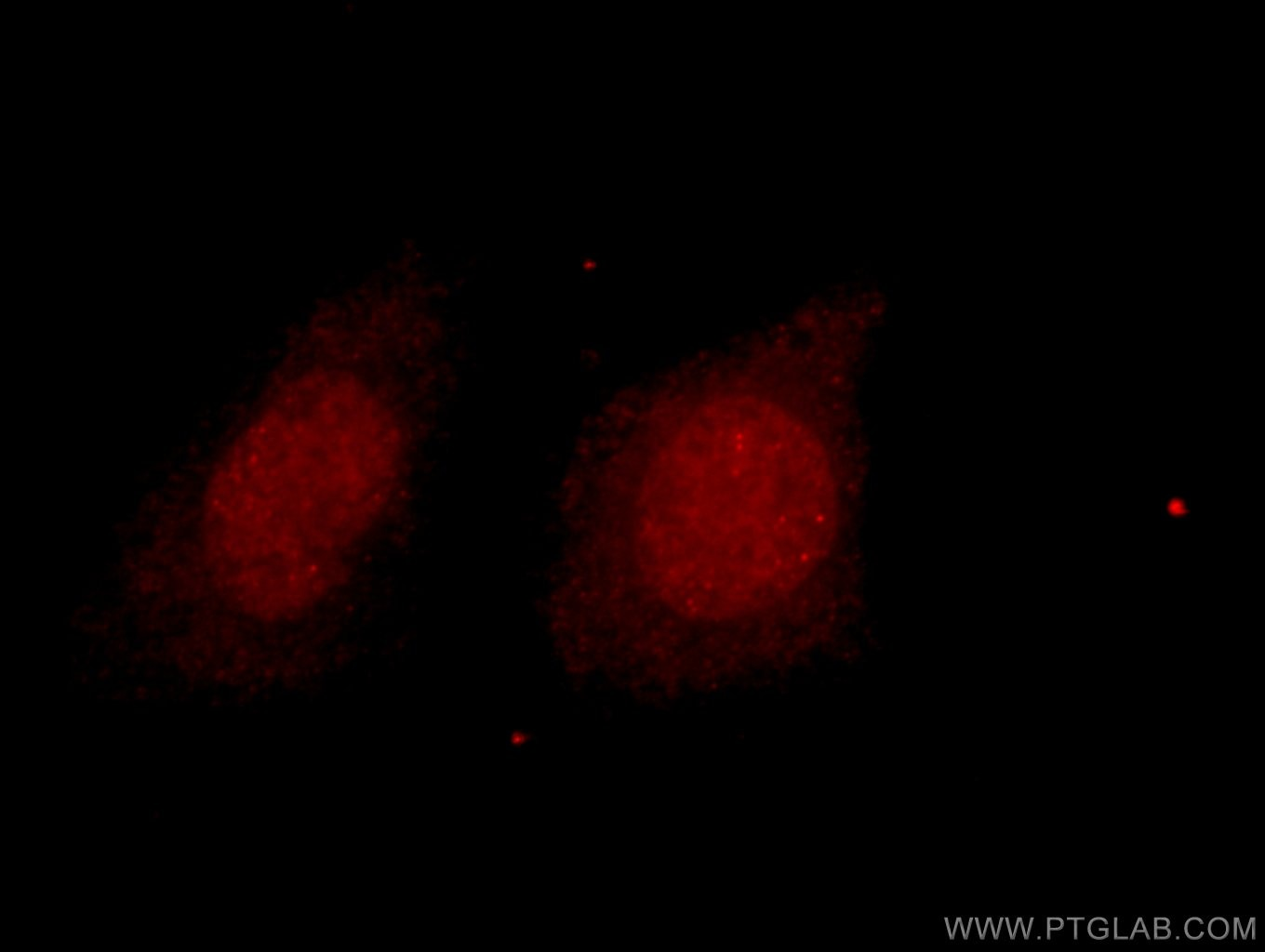 IF Staining of HeLa using 16152-1-AP