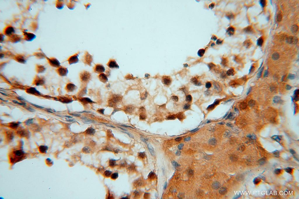 IHC staining of human testis using 16152-1-AP