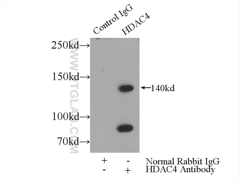 IP experiment of HeLa using 17449-1-AP