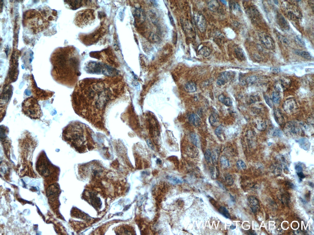 IHC staining of human lung cancer using 16165-1-AP