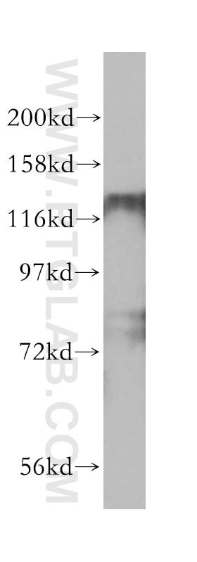 HDAC5-specific Polyclonal antibody