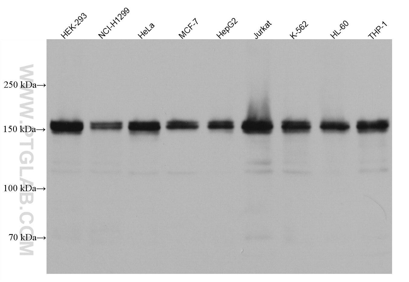 WB analysis using 67250-1-Ig