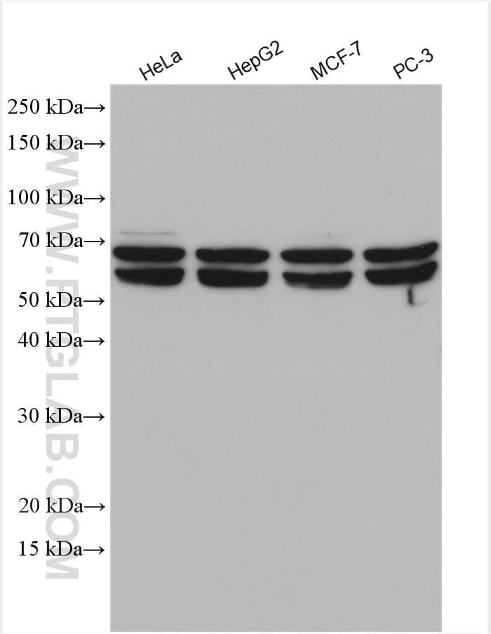 WB analysis using 11317-1-AP