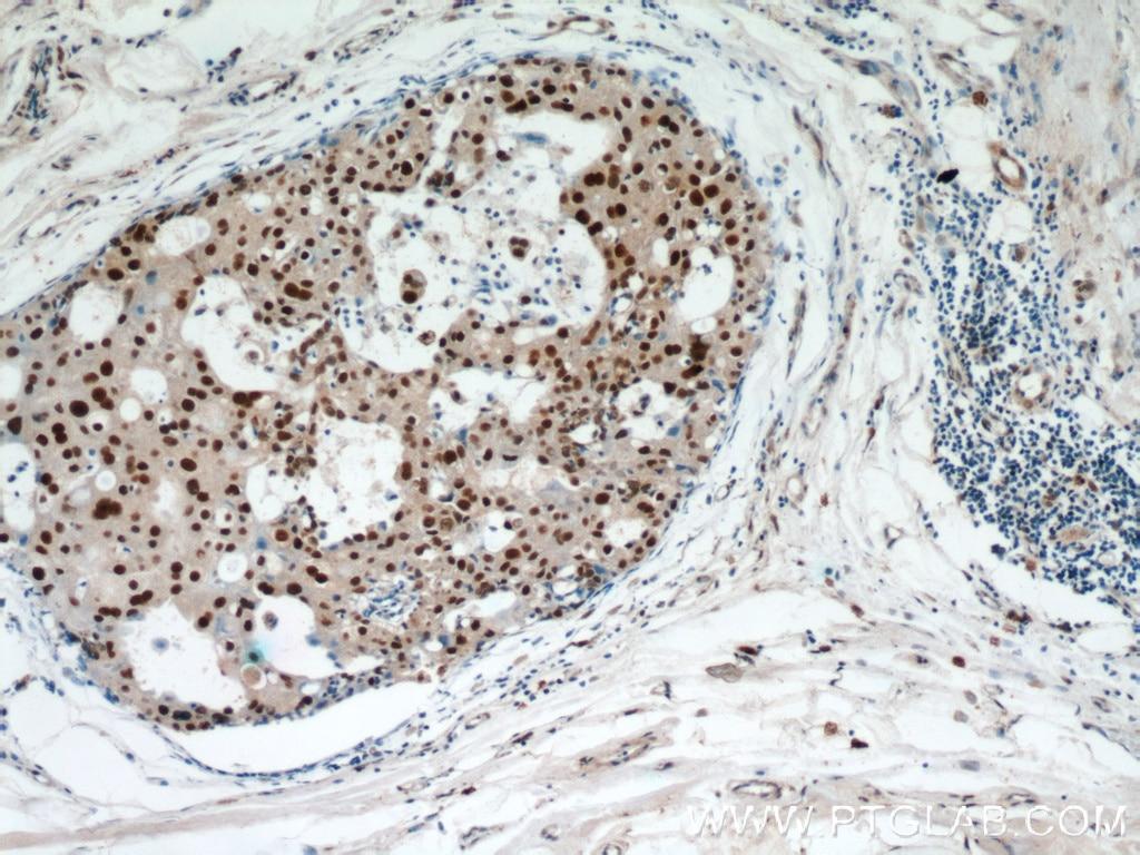 15676-1-AP;human breast cancer tissue