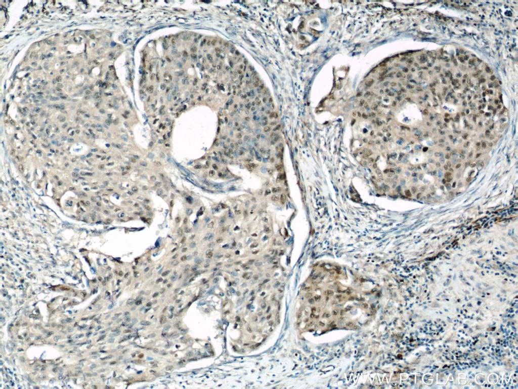 15676-1-AP;human cervical cancer