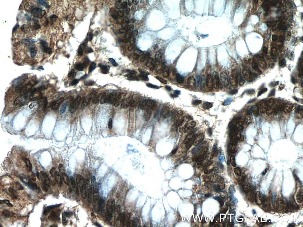 IHC staining of human colon using 24949-1-AP