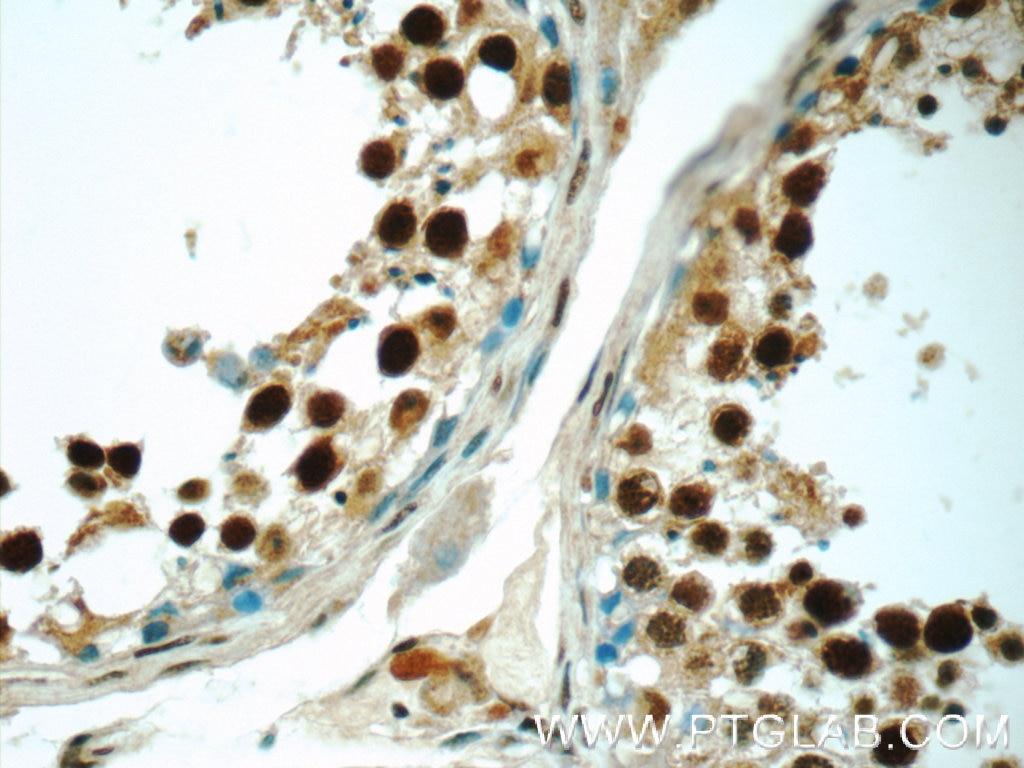 IHC staining of human testis using 24949-1-AP