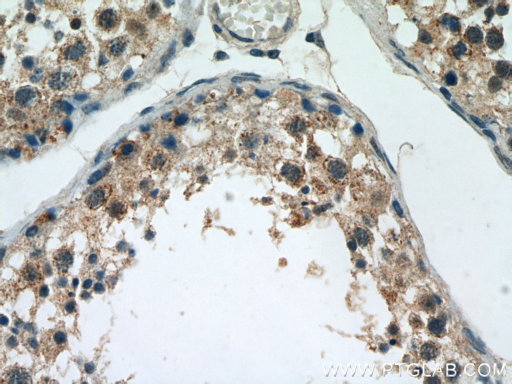 IHC staining of human testis using 21749-1-AP