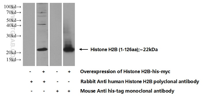 Histone H2B