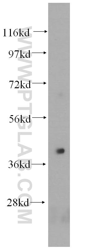 HLA-E Polyclonal antibody