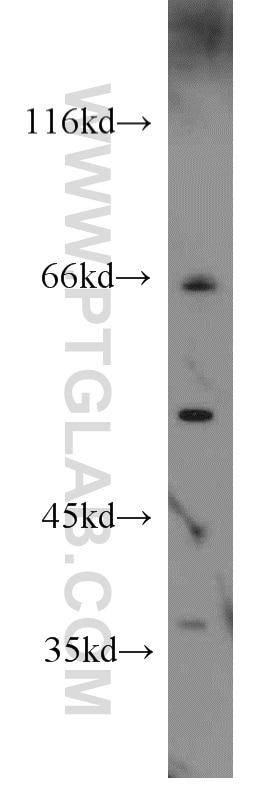 WB analysis of Raji using 55379-1-AP
