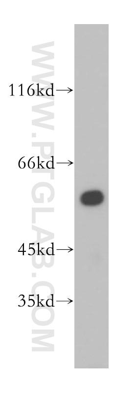 17643-1-AP;A431 cells