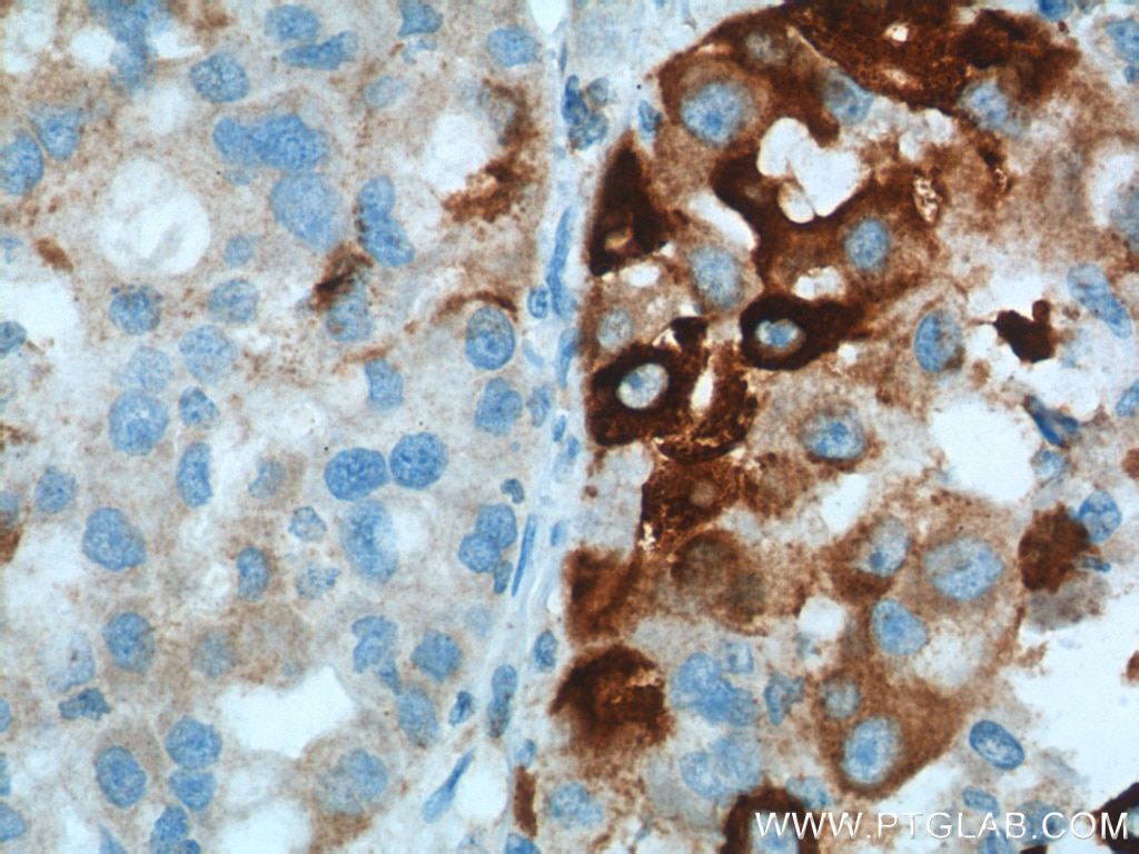 IHC staining of human liver cancer using 10701-1-AP