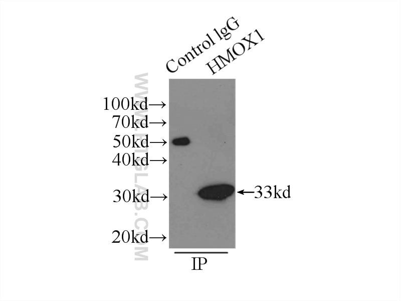 IP experiment of HeLa using 10701-1-AP
