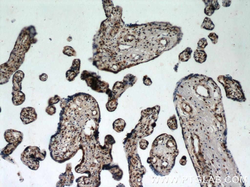 12770-1-AP;human placenta tissue