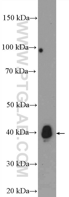 12770-1-AP;mouse liver tissue