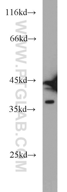 12770-1-AP;HeLa cells