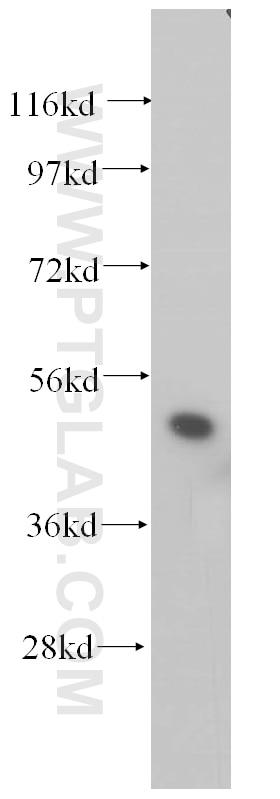 14774-1-AP;HeLa cells