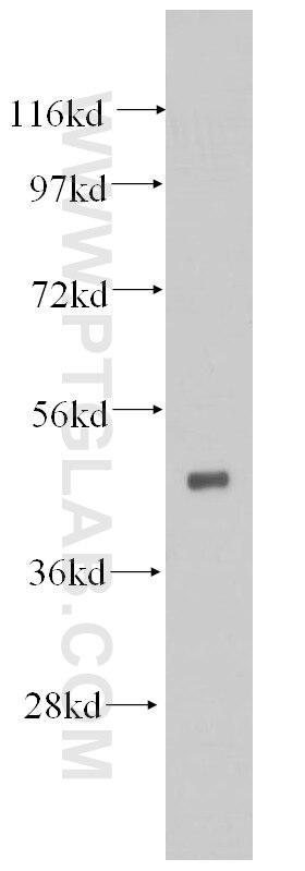14774-1-AP;mouse brain tissue