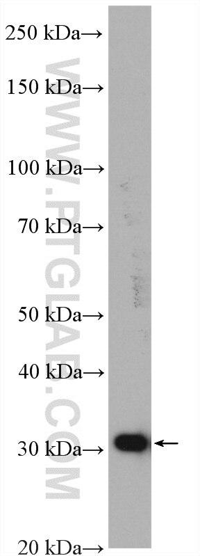 WB analysis of HeLa using 27282-1-AP
