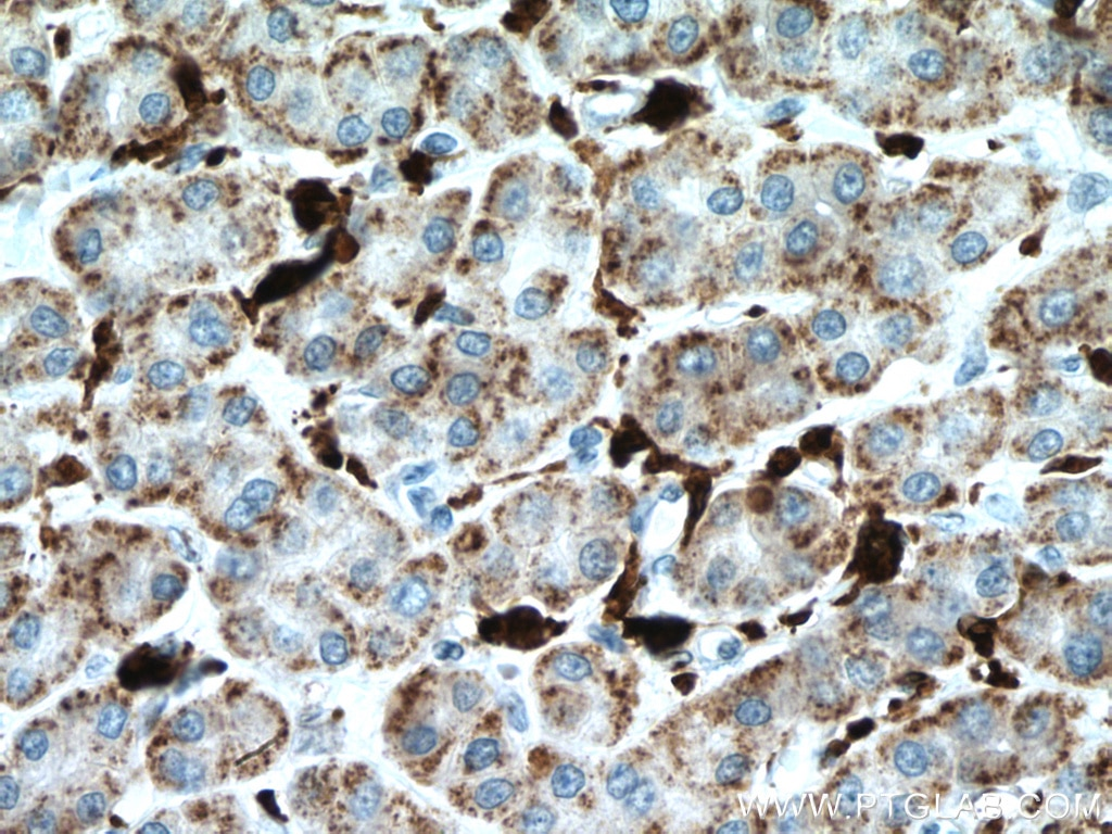 IHC staining of human liver cancer using 66743-1-Ig