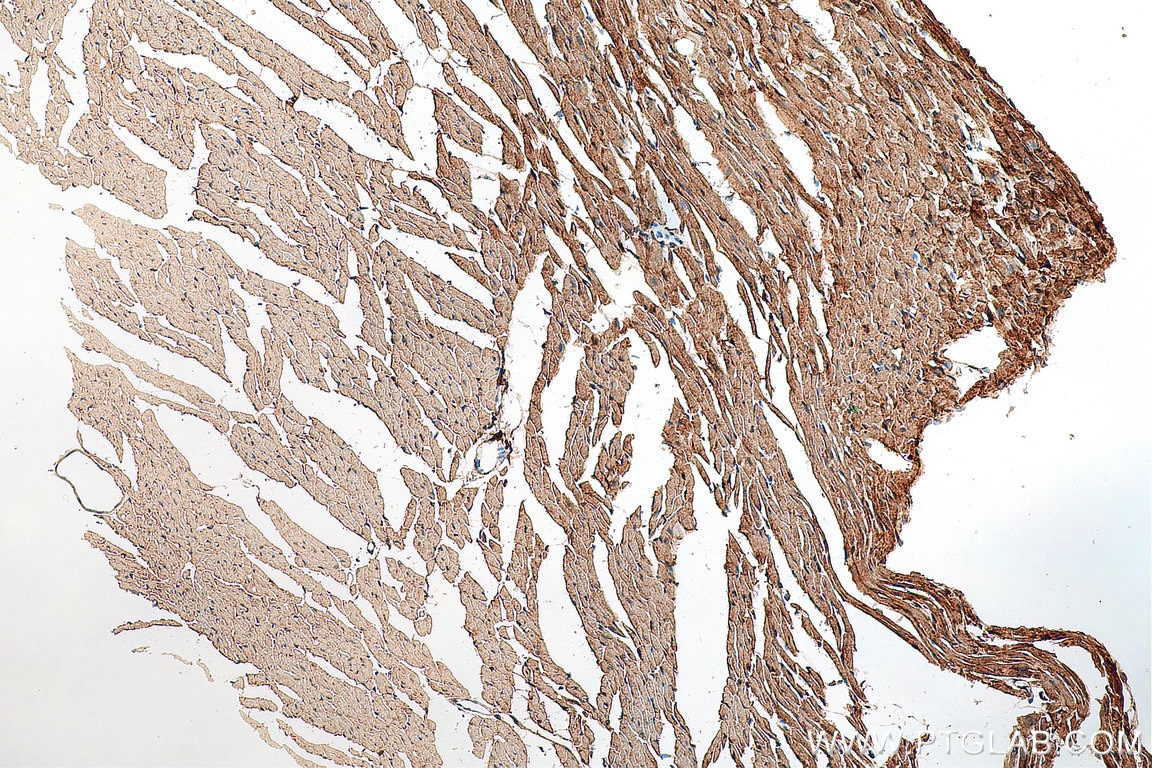 IHC staining of mouse heart using 18142-1-AP