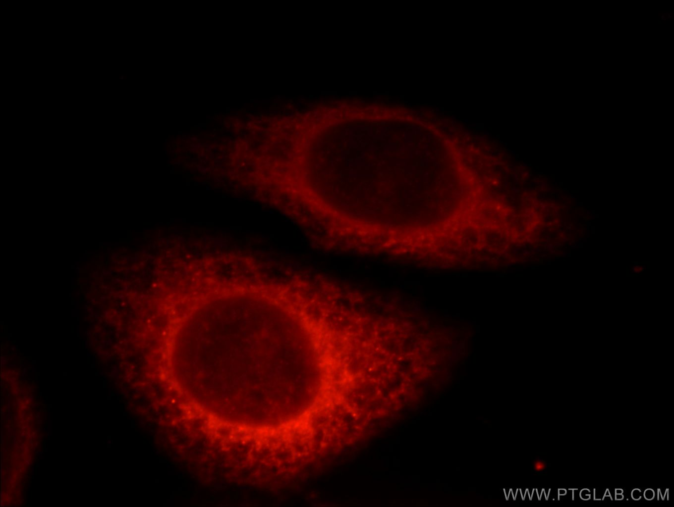 HSP90B1 Immunofluorescence IF 14700-1-AP HSP90B1 Antibody ECGP; GP96; GRP94; TRA1