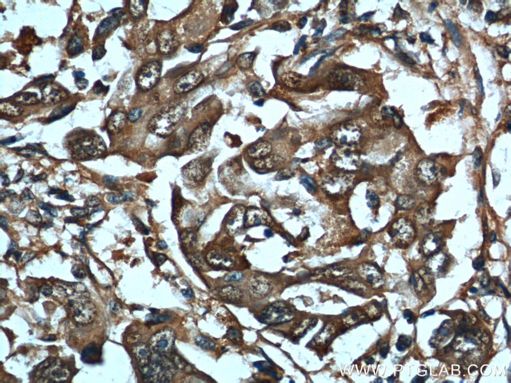 HSP70 Polyclonal antibody
