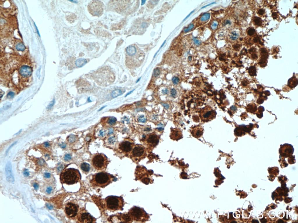 IHC staining of human testis using 12797-1-AP