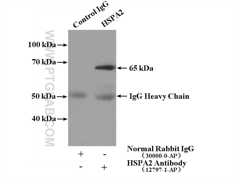 IP experiment of mouse skeletal muscle using 12797-1-AP