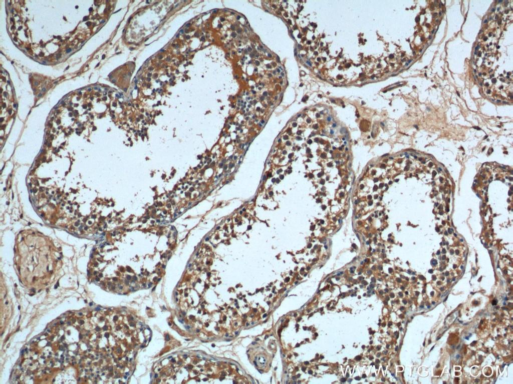 IHC staining of human testis using 66291-1-Ig