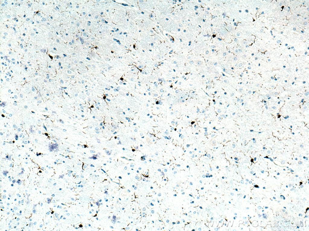 IHC staining of rat brain using 26177-1-AP