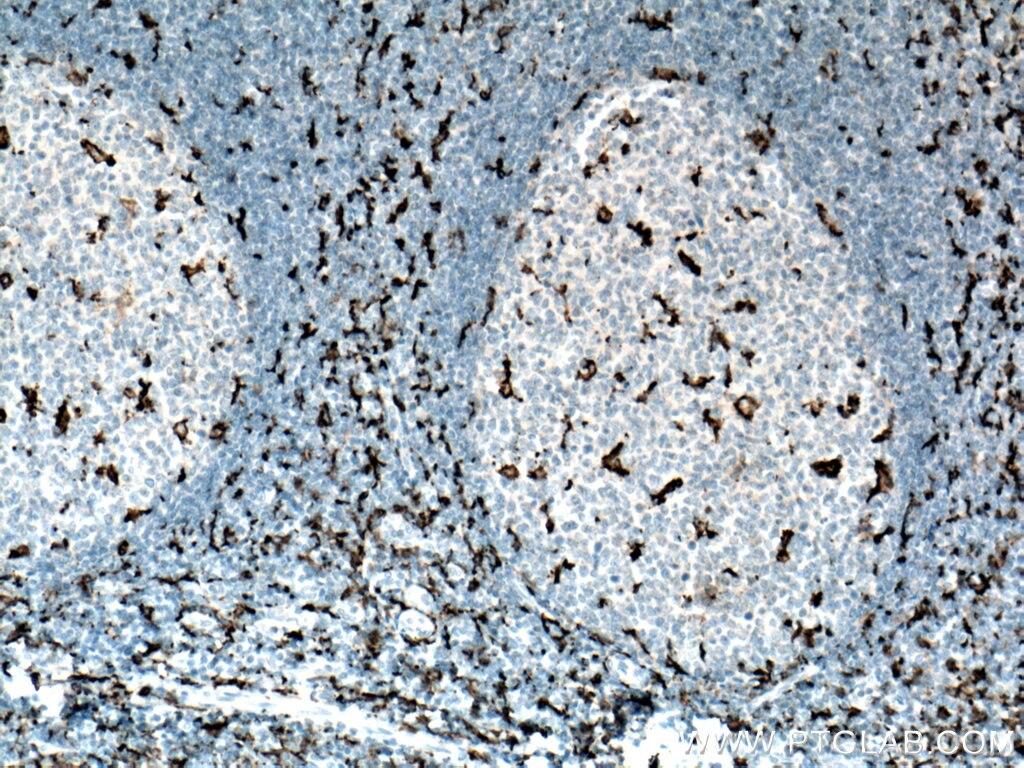 IHC staining of human tonsillitis using 66827-1-Ig