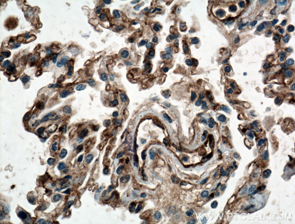 IHC staining of human lung cancer using 11714-1-AP