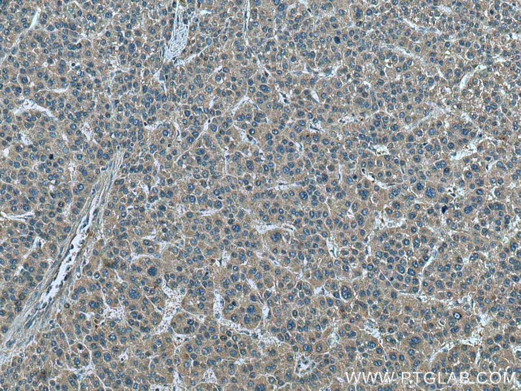 IHC staining of human liver cancer using 66081-1-Ig